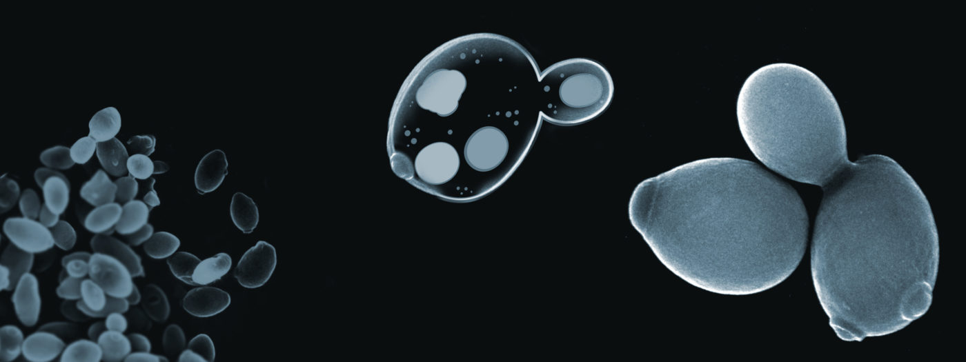 Jästceller